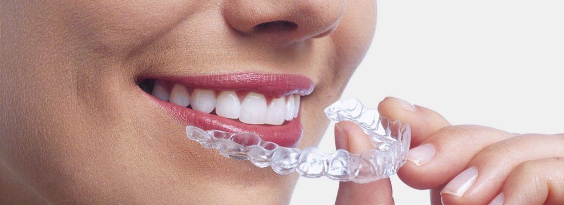 Avantages et inconvénients de l'orthodontie Invisalign