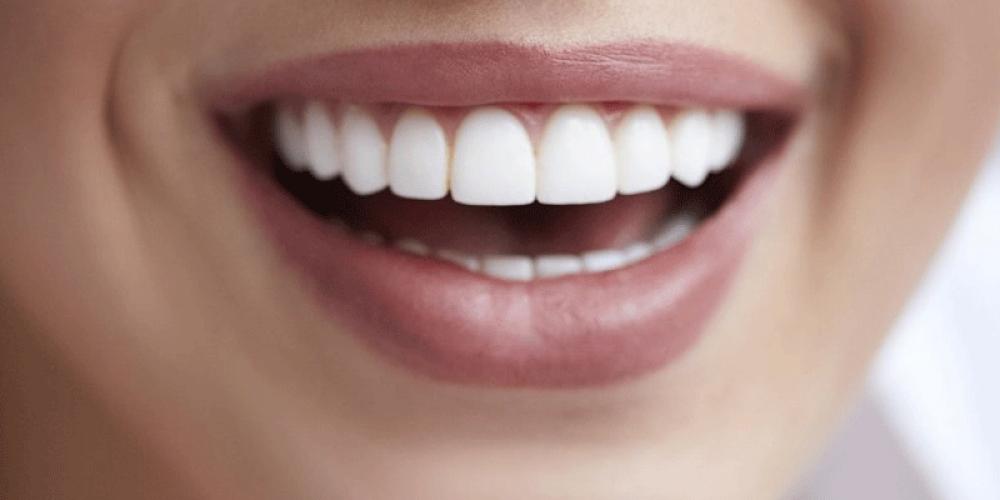 Comment avoir des dents parfaitement alignées ?